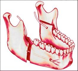 ostéotomie de la mandibule