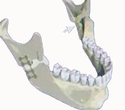 ostéotomie haute de la mandibule