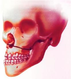 ostéotomie du maxillaire (de Lefort I)