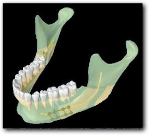 Ostéotomie-basse-de-type-Epker