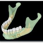 Ostéotomie-basse-de-type-Obwegeser