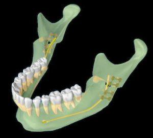 Ostéotomie Haute
